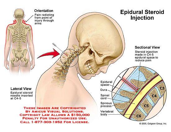 lumbar epidural steroid injection reviews