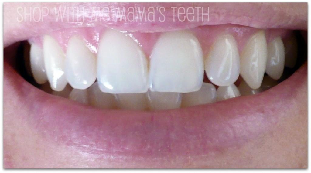teeth in an hour reviews