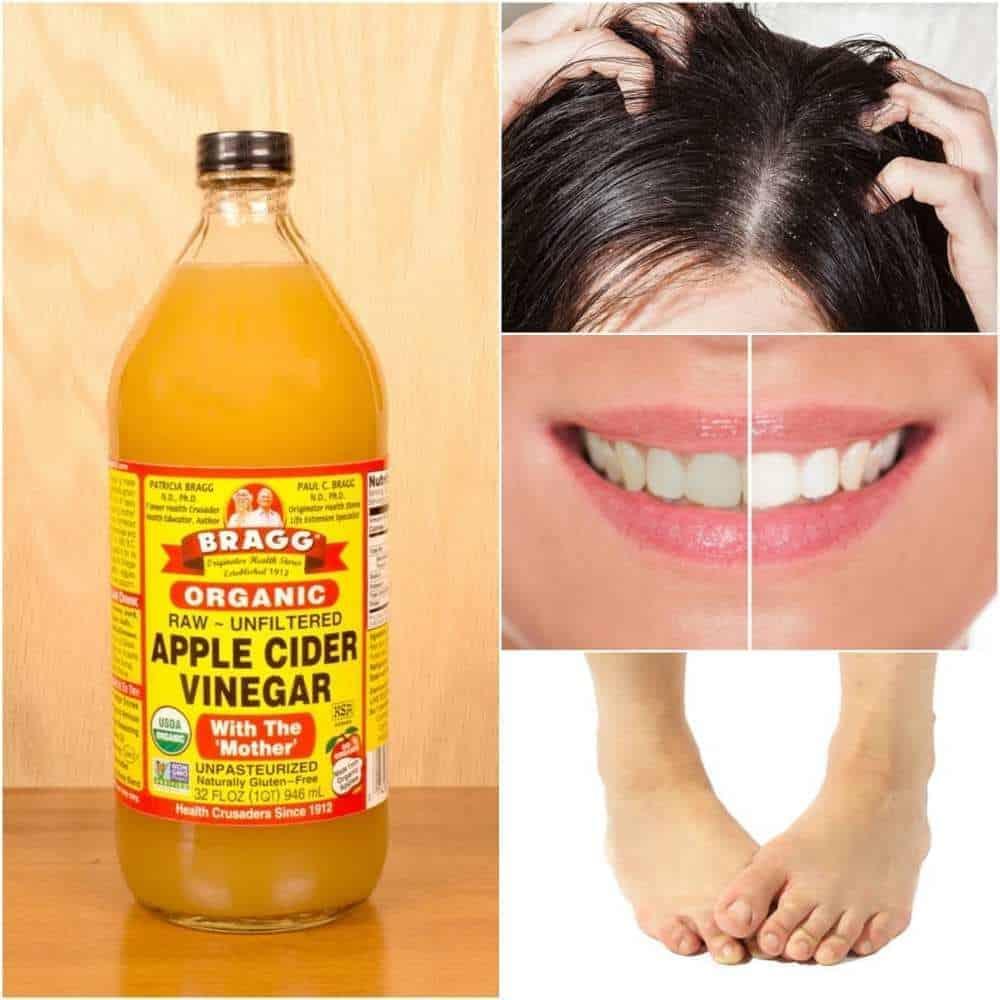 apple cider vinegar for varicose veins reviews