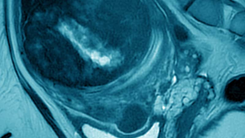 radiofrequency ablation for fibroids reviews